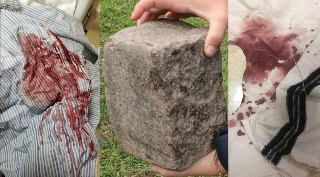 Méretes kőtéglával támadtak meg egy rabbit Brooklynban