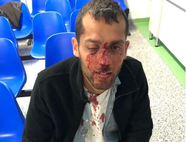 Brutálisan megvertek két izraelit egy lengyel klubban