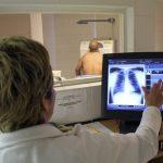 Egy vérvétellel kiszűrhető lehet a tüdőrák izraeli tudósok fejlesztésének köszönhetően
